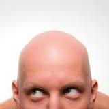 頭から毛が生えてる人って恥ずかしくないのかよ・・・(´・ω・`)