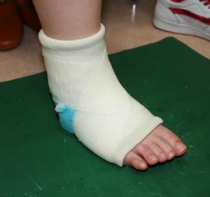 幼稚園のブランコから手を滑らせて落ちて、足を石膏で固定された。外しても痛かったので別の病院に行ったらまだ治ってなかった。